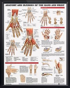 Anatomy and Injuries of the Hand and Wrist poster defines injuries like carpal tunnel, osteoarthritis, rheumatoid arthritis, finger maladies. Muscles chart for doctors and nurses.