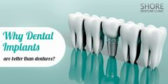 Dental implants are the new replacement solution for your missing teeth. Say goodbye to the painful process of having dentures and welcome implants instead. Dental Surgery, Dental Implants, Dental Hygienist, Dental Care, Dental Bridge, Cosmetic Dentistry, Oral Health, Teeth Whitening, Missing Teeth