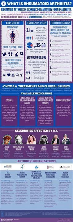 "What is rheumatoid arthritis ? ""Rheumatoid arthritis is a chronic inflammatory form of arthritis. Rheumatoid arthritis will cause damage to the flexible synovial membrane of the joints. The effects o What Is Rheumatoid Arthritis, Rheumatische Arthritis, Types Of Arthritis, Arthritis Remedies, Inflammatory Arthritis, Arthritis Relief, Arthritis Exercises, Endometriosis, Health Remedies"