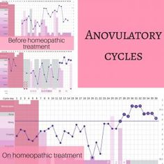 Although of course I love it when patients come back to me with symptoms improved, I really get excited when I see their hormone levels are improving by checking out their charts! Now I want to share a couple of those charts from my collection with you. Cervical Mucus, Pre And Post, Hormone Balancing, Menstrual Cycle, Get Excited, Homeopathy, Charts, Bar Chart