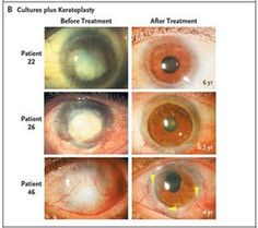 Italian researchers say stem cell transplants can repair eyes damaged by chemical burns. The treatment worked fully in 82 of 107 eyes, the study concludes.Read more: http://www.digitaljournal.com/article/293804#ixzz3S34NFyABBlindness.jpg (550×488)