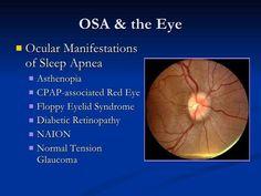 sleep apnea - Google Search #Sleepapneasymptoms What Causes Sleep Apnea, Cure For Sleep Apnea, Sleep Apnea Remedies, Insomnia Remedies, Trying To Sleep, How To Get Sleep, Sleep Debt, Home Remedies For Snoring, Diabetic Retinopathy