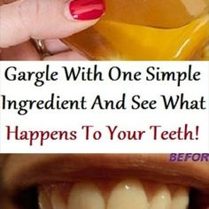 Gargle With One Simple Ingredient And See What Happens To Your Teeth!