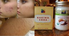 Today we will reveal the recipe of an amazing natural mixture that will deeply clean your pores and help you get rid of blackheads and acne.This combination will also exfoliate your skin remove excess dirt and eliminate redness acne and scars. Baking With Coconut Oil, Natural Coconut Oil, Coconut Oil For Acne, Coconut Oil Uses, Flaxseed Gel, Get Rid Of Blackheads, Best Acne Treatment, Wrinkle Remover, Acne Remedies