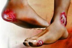 SEGUROS PRIZA te comenta. Si tiene diabetes, el nivel de azúcar en su sangre es muy elevado. Con el tiempo, esto puede dañar los nervios o los vasos sanguíneos. El daño a los nervios que produce la diabetes puede hacer que pierda la sensación en los pies. Es posible que no sienta una cortadura, una ampolla o una llaga. Las lesiones como estas en el pie pueden causar úlceras e infecciones.