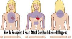 Rozpoznaj objawy ataku serca, zanim będzie za późno