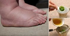 10 Water Retention Remedies You Can Find in Your Home