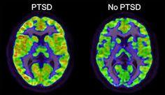 Image result for PTSD brain
