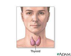 Thyroid Disease in Fibromyalgia & Chronic Fatigue Syndrome