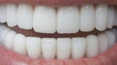 First impressions are maybe based on beautiful and healthy smile and bright white teeth. This is probably the most important beauty mark because a beautiful and noticeable smile can spread lot of positive energy. Bright and white teeth mean a great overall health and high self-esteem. On the contrary, yellow and damaged teeth do not […]