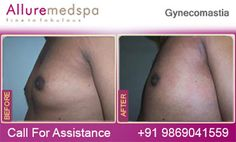 Severe Gynecomastia is a serious condition in that men breast size is so large as women breasts. Severe Gynecomastia surgery is best option to correct this condition to achieve that flat, firm and fabulous chest. Body Surgery, Weight Loss Surgery, Surgeon Doctor, Surgery Center, After Surgery, Hair Transplant, Breast, Cosmetics, Sharjah