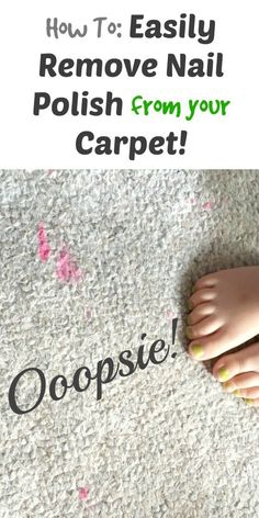 This super-easy, super-quick trick will remove those pesky nail polish stains better than nyou could ever imagine! Let's face it... It happens!