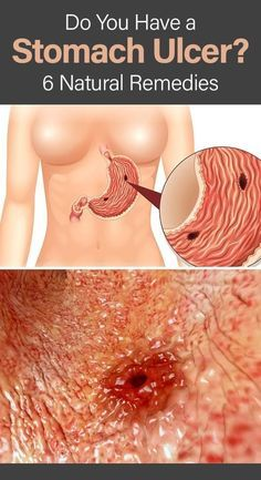 If you suffer from frequent heartburn and stomach pain, there is a chance that you might have a stomach ulcer- learn how to spot the signs and symptoms as well as some effective natural remedies. Food For Stomach Ulcers, Foods For Ulcers, Stomach Ulcers Symptoms, Stomach Ulcer Remedies, Heartburn Symptoms, Reflux Symptoms, Reflux Disease, Foods For Stomach Ache, Stomach Burning Remedies