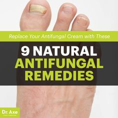 Antifungal remedies - Dr. Axe http://www.draxe.com #health #Holistic #natural