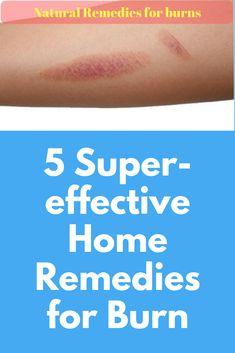 5 Super Effective Home Remedies For Burn Exercise And Home Remedies For Bronchitis, Asthma Remedies, Cold Home Remedies, Health Remedies, What's Good For Burns, Skin Burn Remedies, Natural Remedies For Burns, Burn Relief