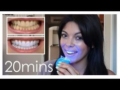 How to Get White Teeth Fast Check these before and afters out