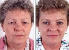 Eyelid Surgery- Top 10 Most Popular Plastic Surgery Procedures for Women