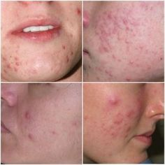 Discover how I clear my acne by healing the root causes of ACNE. Read my journey and discover how I get rid of acne forever. Painful Pimple, Get Rid Of Spots, Beauty Hacks Skincare, Beauty Tips, Glossier Lip Gloss, Baby Acne, Acne Face Wash, Acne Causes