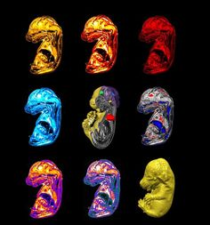 Imaging transgenics: 3D micro magnetic resonance imaging (MRI) reveals tiny changes in brain and heart structure of mouse embryos | UCL Centre for Advanced Biomedical Imaging