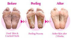 Come and get a foot peel today!  $35.00 for fresh new feet all summer long.  906-225-7126