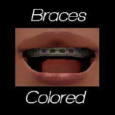 Mod The Sims - Braces!