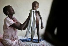 Fome de Criança Africana