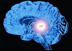 Too much fluoride in your diet? It may be time to detox! How to Decalcify Your Pineal Gland.