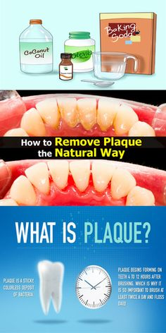 How To Remove Plaque Without Going To The Dentist ! Healthy Top Story