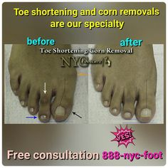 Expert toe shortening and corn removal at nycfootcare.  Call us for a free consultation.  888-nyc-foot / nycfootcare.com  #NYC #ouch #celebrity #cosmetic #toes #makeup #manhattan #bronx #brooklyn #queens #fashion #fashionista #heels  #ugly #redcarpet #running #eww #yoga #ballerina #feet #fun #ballet #funny #dance #dancer #repost #success #style  #stylist #shoes