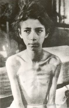 A 10 year old girl from Hungary liberated in Birkenau by the Red Army on January 27, 1945.