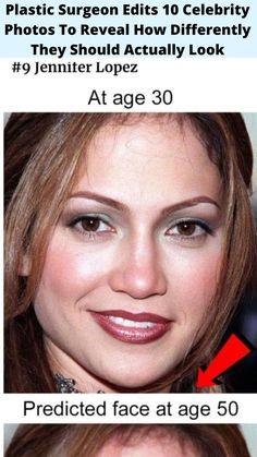 Plastic #Surgeon Edits 10 Celebrity Photos To #Reveal How #Differently They Should #Actually Look