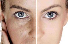Mantener una piel saludable es importante para poder proyectar una imagen pulcra y estética. Los poros abiertos hacen lucir más vieja y menos estética su piel. En este artículo puede encontrar 3 simples pasos para eliminar poros abiertos en pocos días. Los remedios caseros son muy fácil, económicos