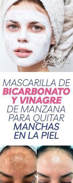 rmag26 Mascarilla de bicarbonato y vinagre de manzana para quitar manchas en la piel