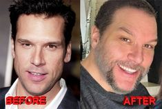 Dane Cook seems to have Botox injctions and chin job. If he had plastic surgery it just worked well for him. He dismissed plastic surgery rumors Dane Cook, Celebrity Plastic Surgery, Under The Knife, Botox Injections, Cosmetic Procedures, Rhinoplasty, Look Younger, Keanu Reeves, Best Diets