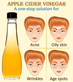 Simple Apple Cider Vinegar treatments for acne-free skin. Toner, mask, facial scrub, and spot treatment recipes.