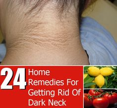 A darkened skin around the neck is a common problem many men and women face. This fairly common hyper skin pigmentation can occur due to various reasons like genetics, aging, polycystic ovary syndrome, over exposure to the sun, hormonal imbalance, eczema, sudden weight loss or weight gain and poor hygiene. One of the main reasons […]
