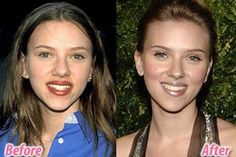 10 Best Plastic Surgery Make-Overs (best plastic surgery, plastic surgery makeovers) - ODDEE