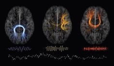 Tractography!