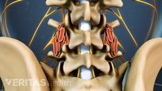 There are several reasons a spinal fusion may fail to alleviate back pain after surgery, including failure to obtain a solid fusion, implant failure and transfer lesions. Back Surgery, Spine Surgery, After Surgery, Si Joint Pain, Hip Pain, Lumbar Spinal Stenosis, Spinal Fusion Surgery, Severe Back Pain, Surgery Recovery