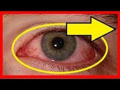 #Remedios #caseros para eliminar #ojos rojos