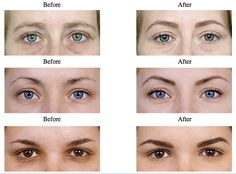 Once they grow back I am definitely doing this! How to pluck your eyebrows in 4 easy steps - I had no idea correctly plucked eyebrows had such a big effect on your face shape and cheekbones!