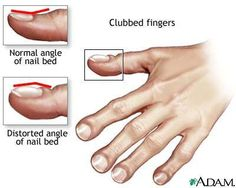 Clubbed fingers due to lack of oxygen halting growth of patient.