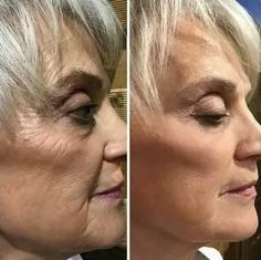 Second Chin Reduction And Lifting Routines - Honing Your Face Without A Surgical Procedure
