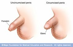 Male circumcision: Before circumcision, the foreskin covers the tip of the penis (glans). After circumcision, the tip of the penis is exposed. From Mayo Clinic. Man Anatomy, Gross Anatomy, Men Health Tips, Circumcision, Body Shaming, Reproductive System, Girl Problems, Female Bodies, Things To Think About