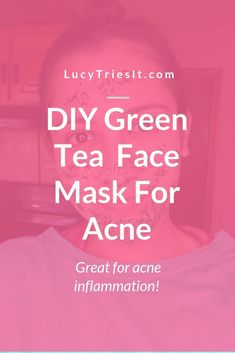 Are you experiencing acne inflammation? Then you might want to try this DIY green tea honey face mask recipe. You won't regret it! Green Tea And Honey, Beauty Hacks For Teens, Honey Face Mask, Get Rid Of Blackheads, Beauty Tips For Face, Younger Looking Skin, Natural Face, Natural Beauty, Teen Boys
