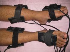 anodyne therapy, peripheral neuropathy