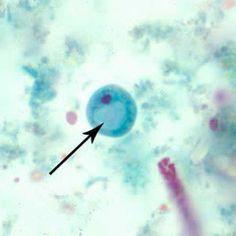 Iodamoeba butschlii, cyst  - 1 nucleus, glycogen vacuole