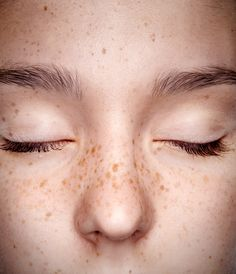 People Are Actually Tattooing Freckles Now