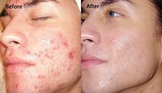 #Dermabrasion and #Microdermabrasion What is it and how can it help? http://goo.gl/HKNv0h