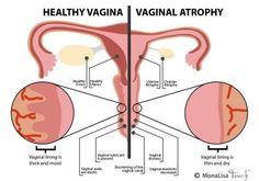 """Vaginal atrophy or Atrophic vaginitis is an uncomfortable condition that can affect girls and women of all ages. In this condition the lining of...""""/>"""